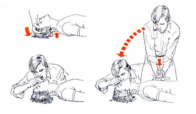 Cardiopulmonary Resuscitation: ideally are two rescuers, the first performs the second artificial respiration and cardiac massage.