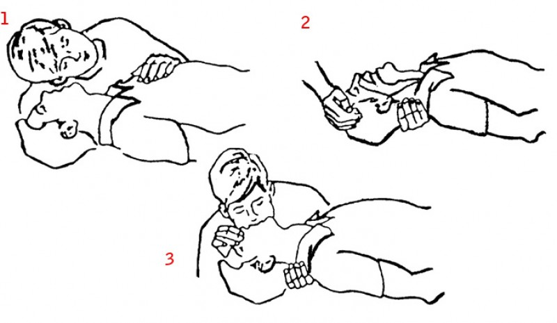 artificial breathing: Check breathing, open the airway and perform ventilations.